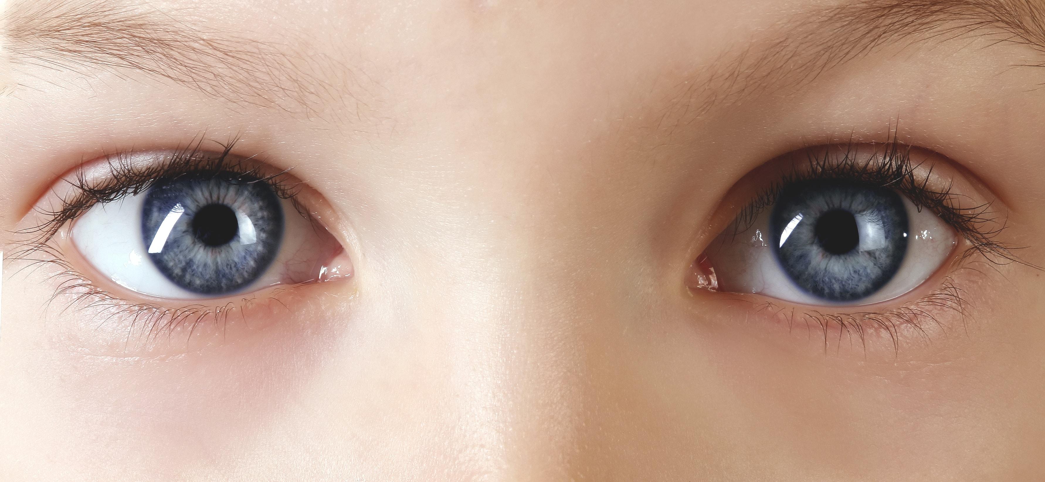 ojos niño Glut1 Dieta Cetogénica asGLUTdiece