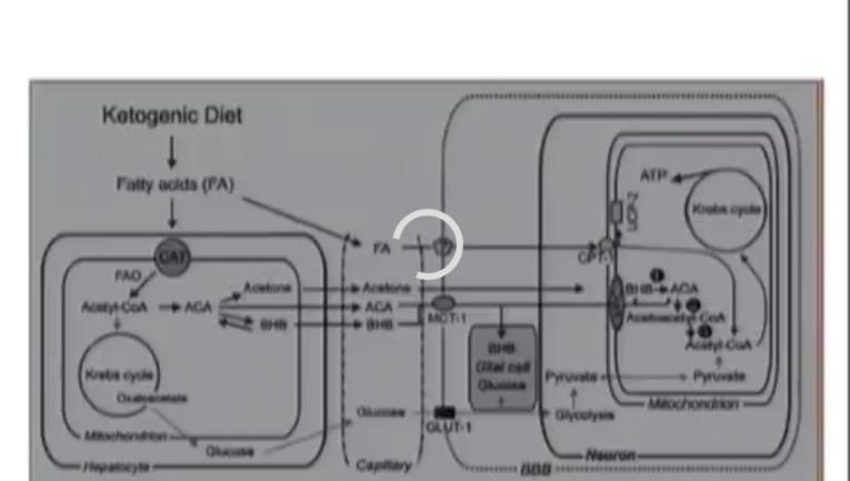Dieta Cetogénica en Epilepsia.